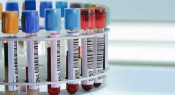 Зарегистрирован 94-й случай коронавируса в Беларуси